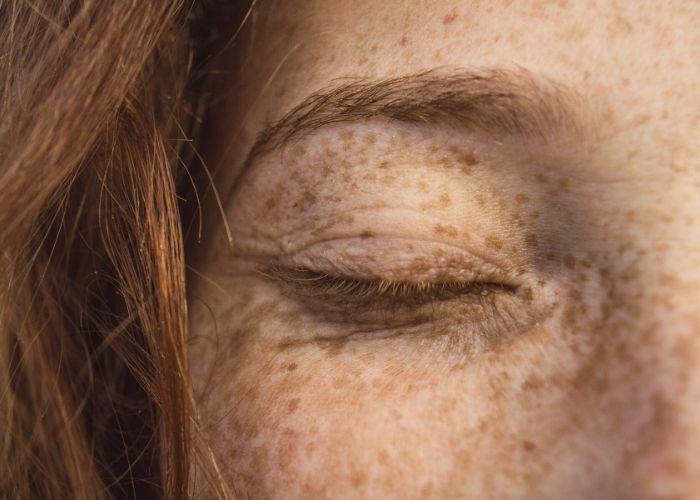 Sonnenbaden je nach Hauttyp für gesunden Vitamin D Spiegel